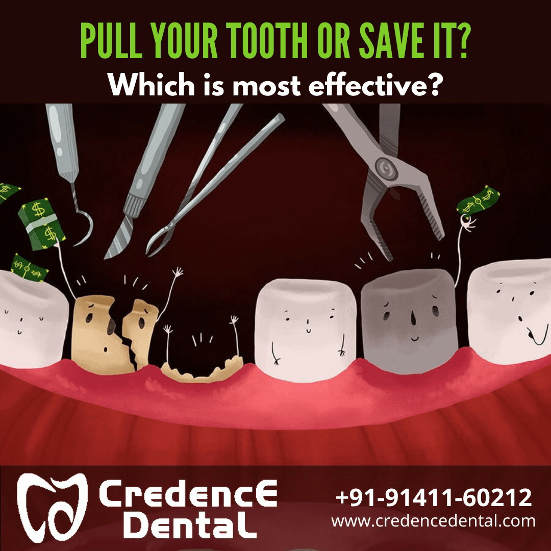 Is it better to pull your tooth or save it? Which is the most effective?